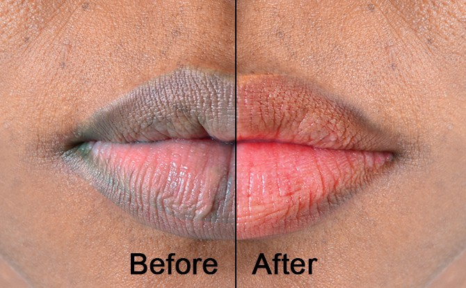 home remedies for pink lips